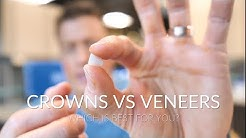CROWNS VS VENEERS - Which is best?