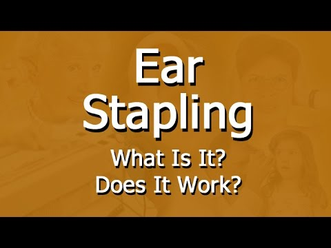 Facts about ear stapling for weight loss youtube facts about ear stapling for weight loss solutioingenieria Gallery