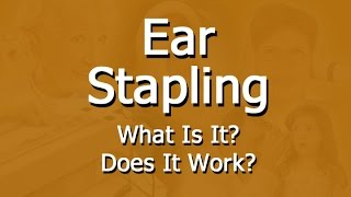 Facts About Ear Stapling For Weight Loss