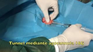 GAVeCeLT - CICC tunn 3FR Plan 1 health in neonato