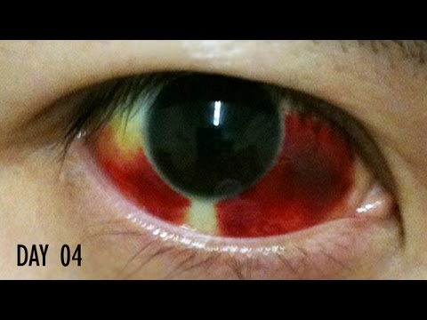 27 Days Healing Time Lapse: Broken Blood Vessel in Eye (Subconjunctival Hemorrhage)