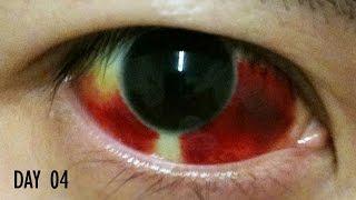 27 Days Healing Time Lapse: Broken Blood Vessel in Eye (Subconjunctival Hemorrhage)