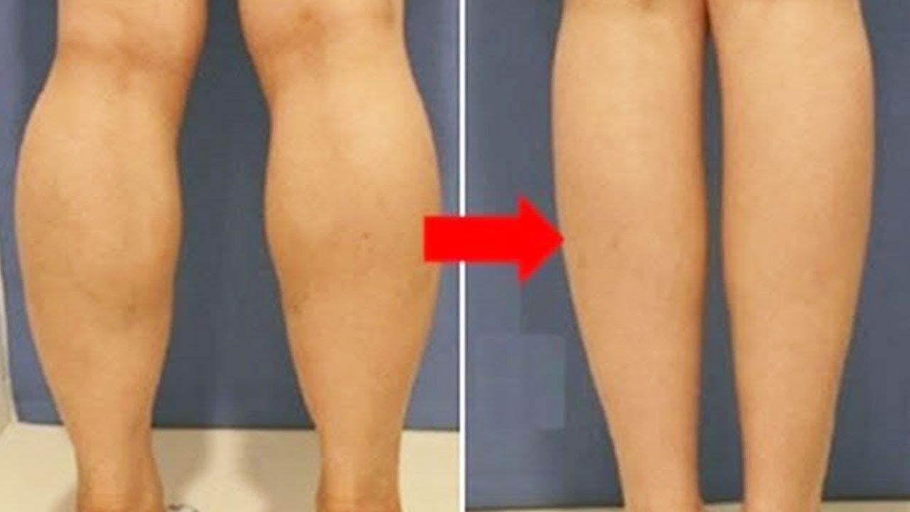 wie kann man dicke waden abnehmen