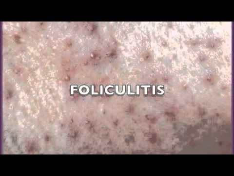 Откуда Escherichia coli в моче? -