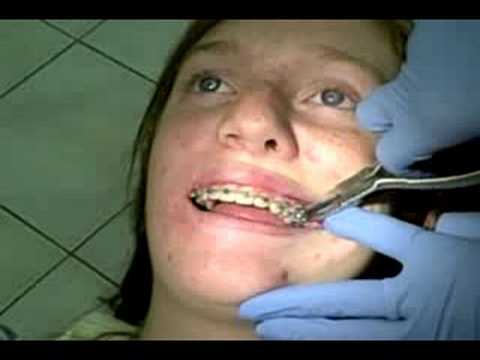 rapid palatal expander instructions