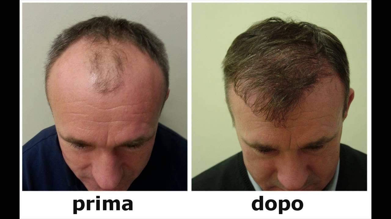 ricrescita capelli metodi naturali - Come stimolare la crescita dei capelli Essere Sani