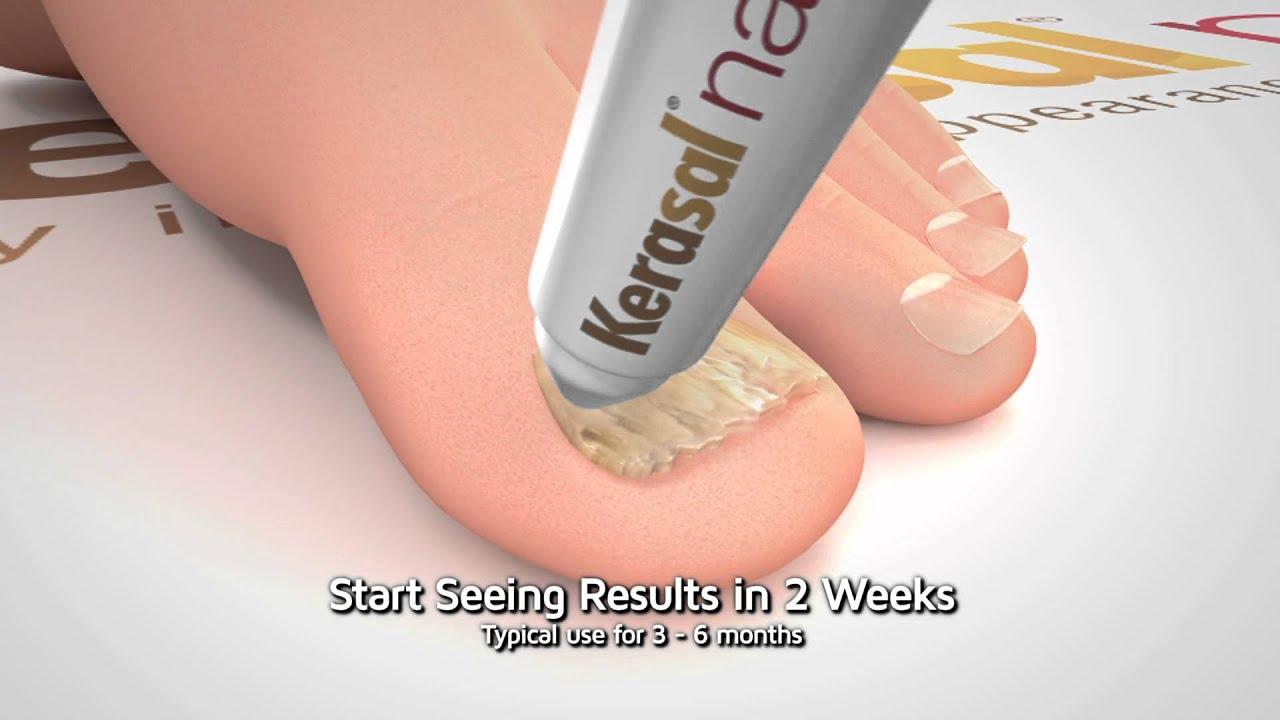 Kerasal Nail Before And After Nail Ftempo