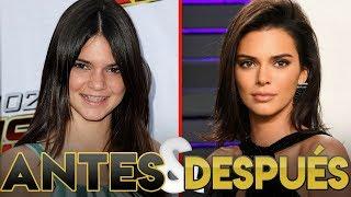 Kendall Jenner | Transformación Antes y Después | Cirugías Estéticas