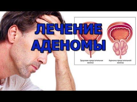 Варианты лечения аденомы простаты. Лекарства, операции, народные средства