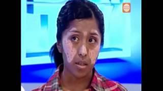 VITILIGO: Diagnóstico y Tratamiento con UVB, psicológico del Vitiligo - Dr. Tv