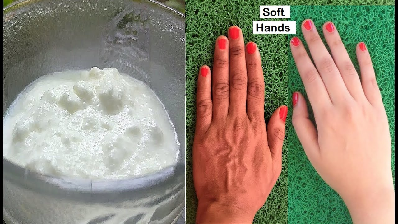 Hand treatments for aging hands