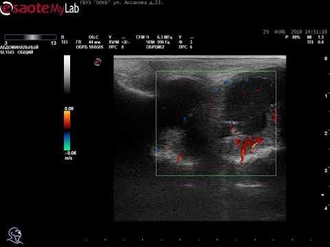 УЗИ: В-крупноклеточная лимфома правой гайморовой пазухи ЦДК