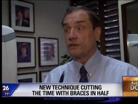 New technique cutting the time with braces in half