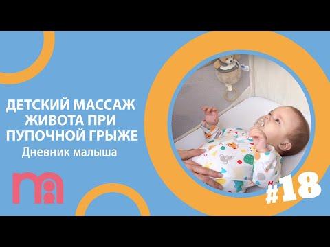 Детский массаж живота при пупочной грыже | Дневник малыша #18