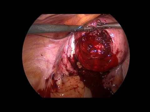 Laparoskopi ile miyom çıkarılması (myomektomi)