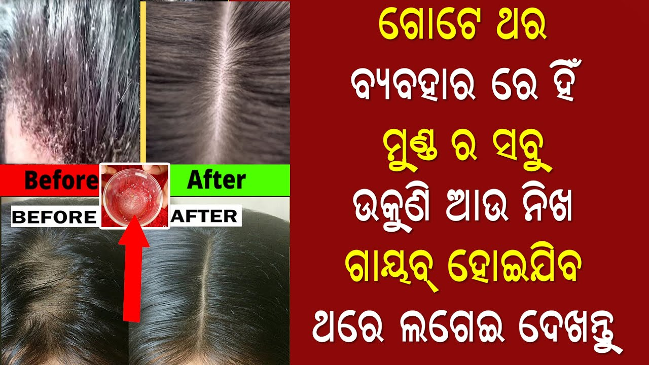 ଜୀବନରେ ଆଉ କେବେବି ମୁଣ୍ଡରେ ଉକୁଣି ଆସିବନି ଏହାକୁ ଥରେ ଲଗେଇ ଦେଖନ୍ତୁ | Remove Lice In 1 day | Priyanka'sTips