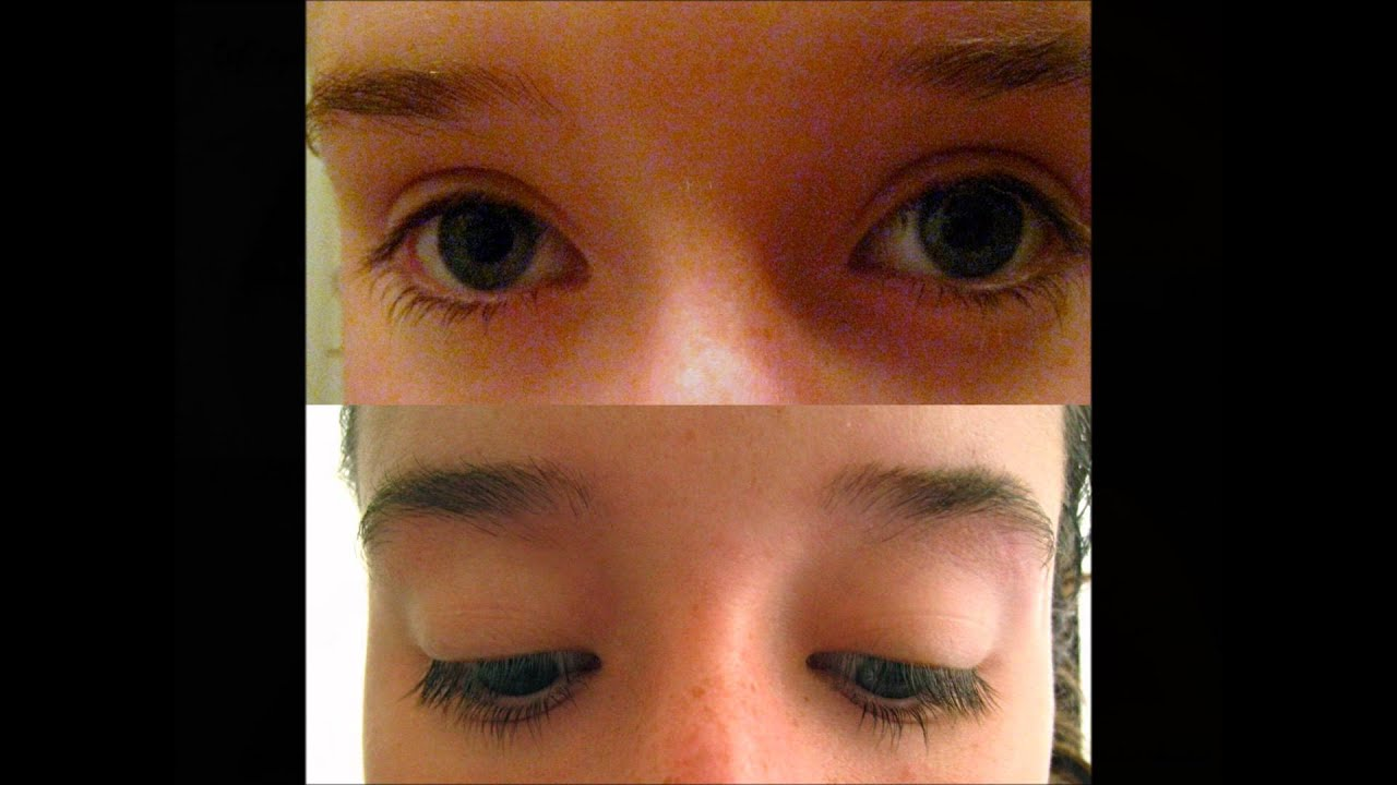 Eyelash Growth Serum Before After Results Youtube