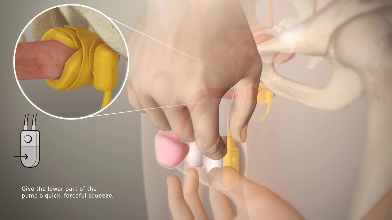 Esfínter urinario artificial AMS 800 (animación de activación y ...
