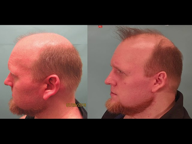 Extracellular Vesicles (EV) for Hair Growth - Patient's Hair Loss Journey