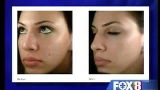 Media Coverage   Elure Skin6 Thumbnail