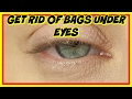 How to Get Rid of Bags Under Eyes for Women Without Makeup