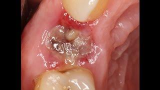 видео Антибиотики при зубной боли
