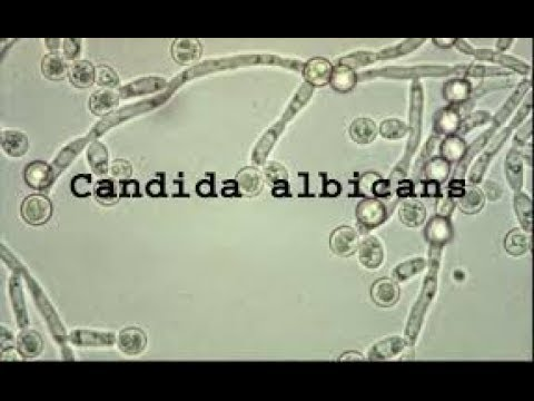 Episode 132 - Candida Albicans | A Cause of Chronic Fatigue, Bad Breath, Weight Gain & More