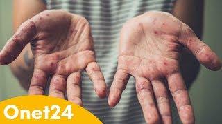 Kolejne zachorowania na odrę | Onet24