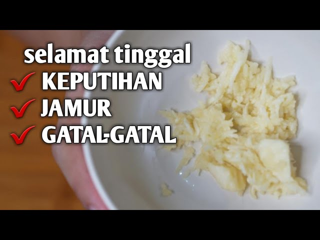 Basmi Jamur Dan Gatal Gatal Keputihan Menggunakan Bawang Putih Youtube