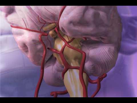 Subarachnoid Hemorrhage - YouTube