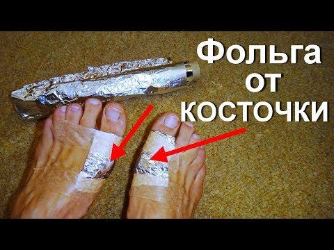 На большом пальце ноги болит шишка