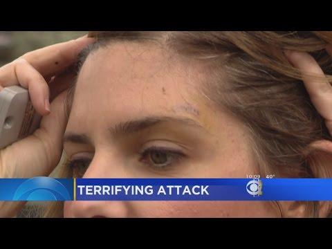 Chicago Woman Recalls Palmer Square Carjacking