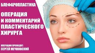 Блефаропластика/Операция и комментарий пластического хирурга