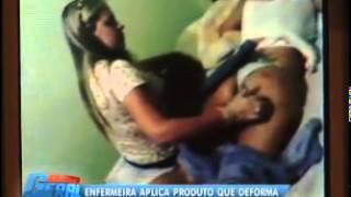 Enfermeira aplica produto químico e deixa  bumbum deformado thumbnail