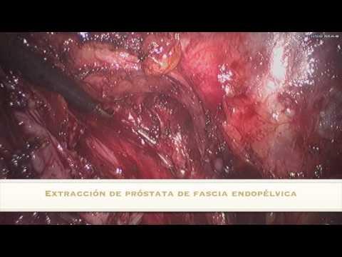 ABORDAJE LATERAL PROSTATECTOMÍA RADICAL MINILAPAROSCÓPICA
