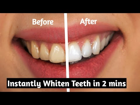 How To Whiten Teeth At Home In 2 Minutes Without Baking Soda 100