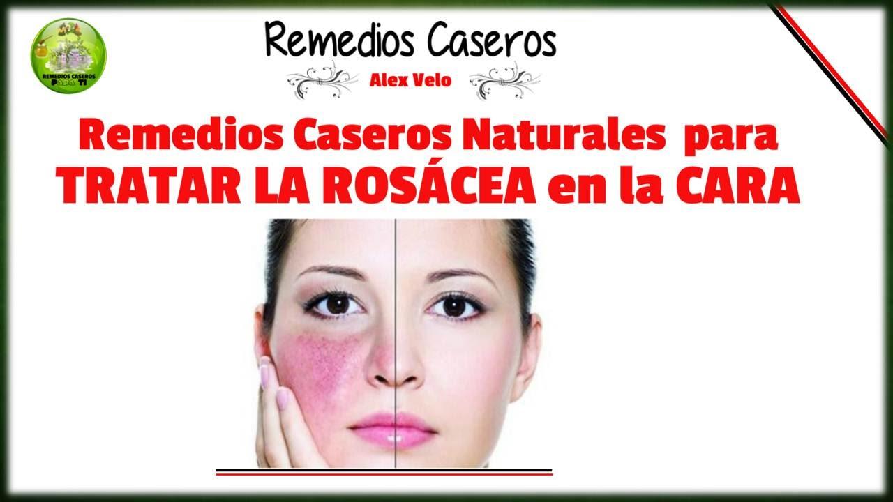 Remedios Caseros Naturales Para Tratar La Rosacea En La Cara Youtube