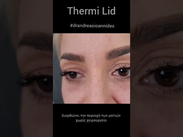 #blepharoplasty #thermilid Αναίμακτη Βλεφαροπλαστική -   Thermi Lid Dr.Andreas Ioannides