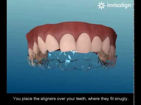 Vorresti raddrizzare il tuo sorriso con apparecchio invisibile e rimuovibile quando vuoi?