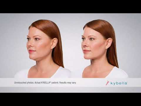 Kybella Palm Beach Beaute Therapies | Medical Spa West Palm Beach, Florida