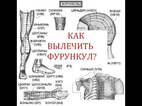 Чири – причины и симптомы чириев, диагностика, лечение и