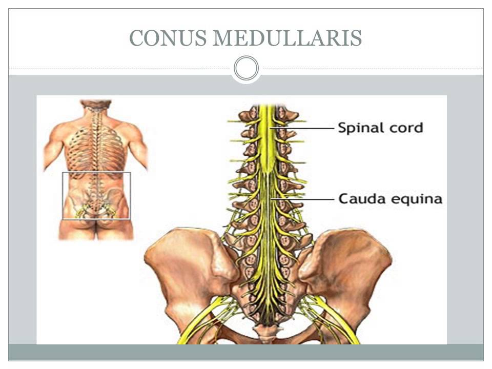 LOWER EXTREMITY IMPAIRMENTS SPINAL NERVE ROOTS CONUS MEDULLARIS www ...