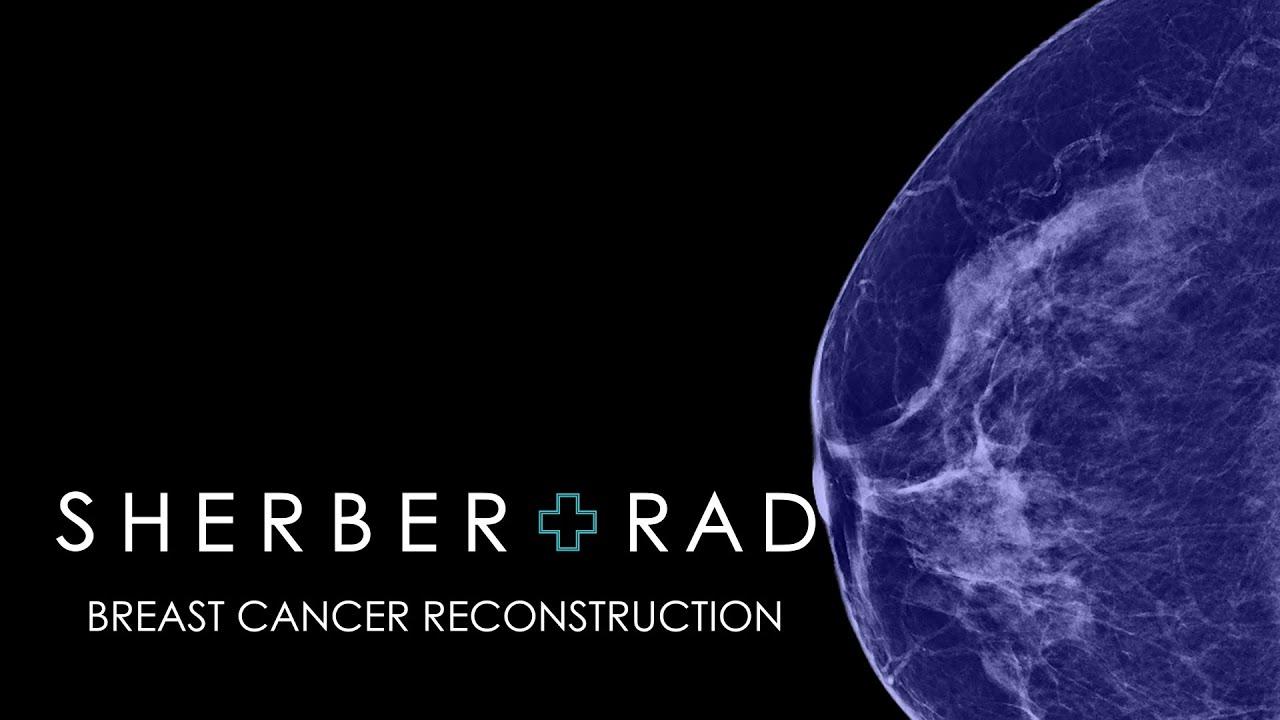 Lumpectomy Reconstruction Oncoplasty - Youtube-2220