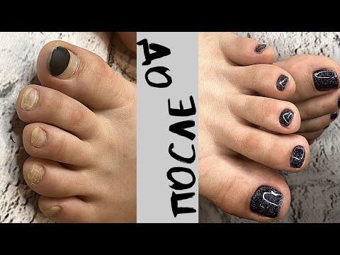 Гель лаку 4 месяца😱 | Комбинированный педикюр| Быстрая обработка пальчиков ног | Russian Pedicure