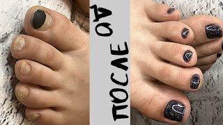 Гель лаку 4 месяца Комбинированный педикюр Быстрая обработка пальчиков ног Russian Pedicure