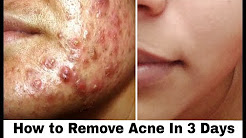 hqdefault - Cure Acne In 3 Days Article