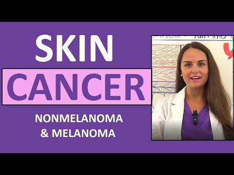 skin-cancer:-basal,-squamous-cell-carcinoma,-melanoma,-actinic-keratosis-nursing-nclex