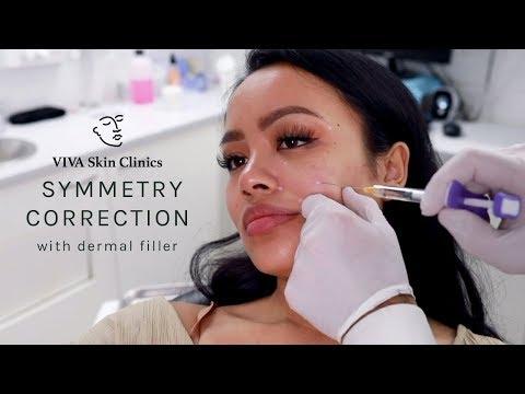 Improving Facial Symmetry with Juvederm Dermal Filler | VIVA Skin Clinics