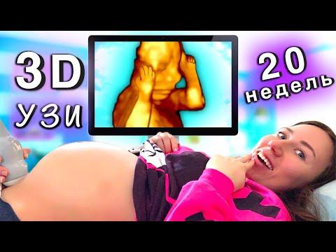 УВИДЕЛИ ЛИЦО МАЛЫША 🍼 Пятое УЗИ 3D 20 недель - Я Беременна | Elli Di
