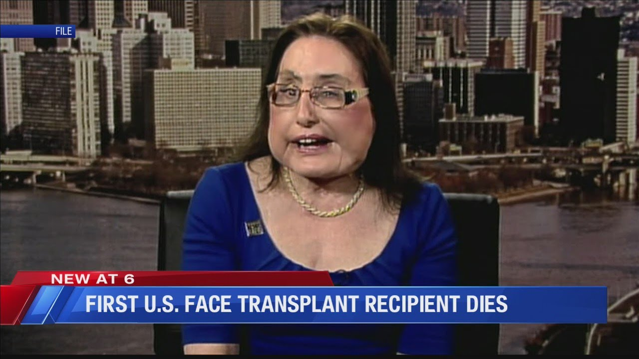 Connie Culp, 1st US partial face transplant recipient, dies years after ...
